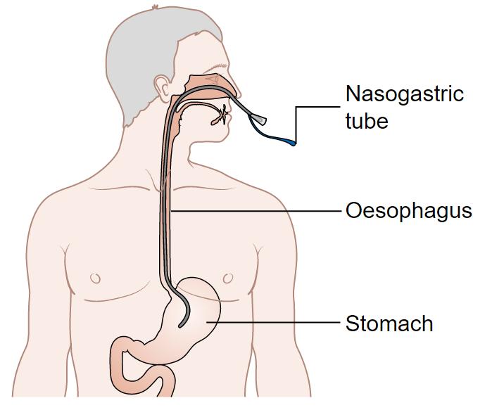 Nasogastric-Tube