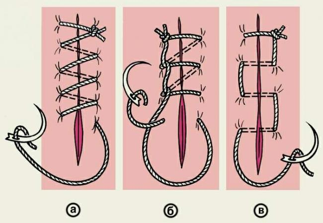 surgical-sutures_6_1